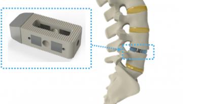 Разработаны интеллектуальные имплантаты для позвоночника